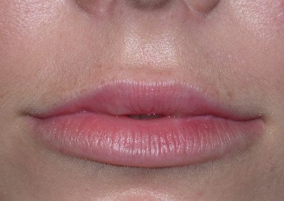 LipsAfter