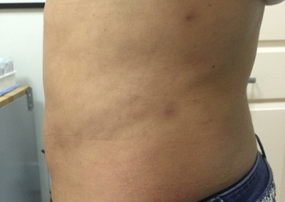 Lipo After