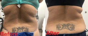 Lipo Waist Back After across 1024x419