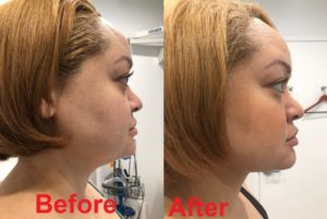 Neck lipo before 1024x686