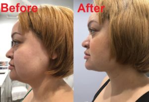 Neck lipo before1 1024x700