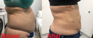 Stomach Waist lipo before 1024x418