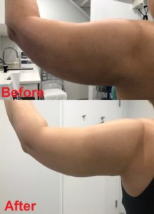 left Arm lipo before 736x1024
